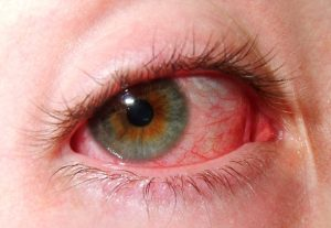 Red Eye | Contact Lens Safety