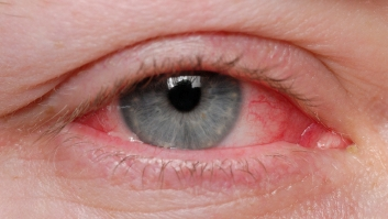 The Fine Art of Treating Dry Eye_Mandel Vision Blog Post