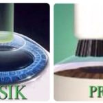LASIK vs PRK | Mandel Vision Blog Post