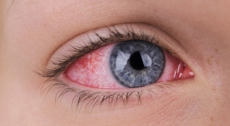How to Prevent the Spread of Infections | Mandel Vision Blog Post