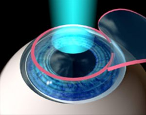 Corneal Thickness and LASIK Eye Surgery | Mandel Vision Blog Post