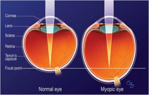Myopia vs Normal Eye_Mandel Vision LASIK NYC