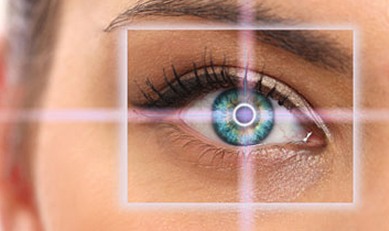 All Laser LASIK | Mandel Vision Blog Post