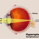 Hyperopia | Mandel Vision Blog Post
