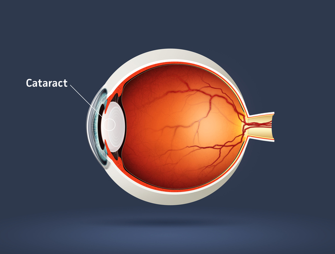 Cataract FAQ's | Mandel Vision Blog Post