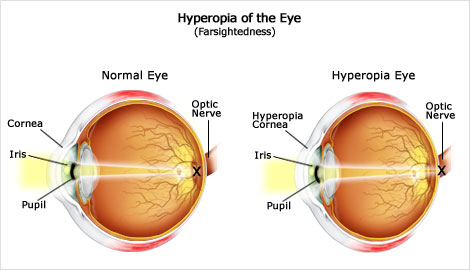 Hyperopia vs Normal Eye_Mandel Vision Blog Post