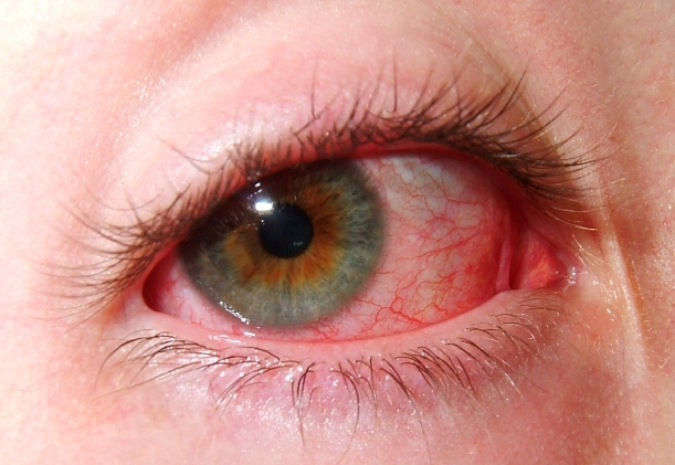 Red Eye_Contact Lens Wear_Eye Health Tip_1